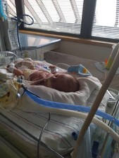 Born at 34 weeks with his twin sister and gave his life so his sister can live he will be her angel